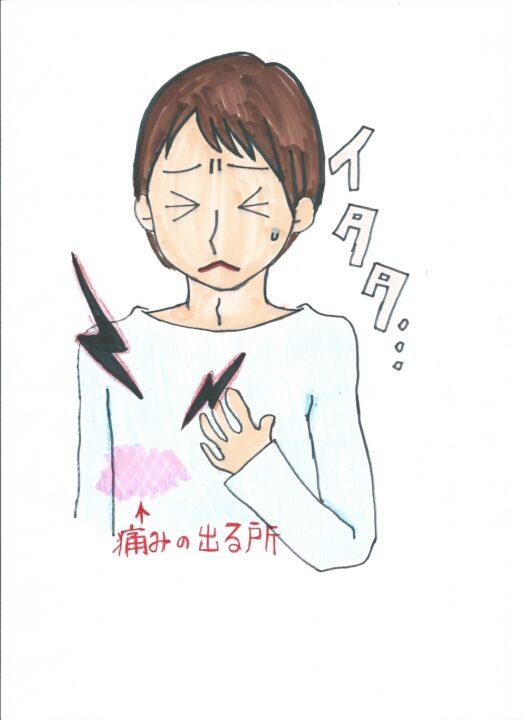 肋間 神経痛 原因