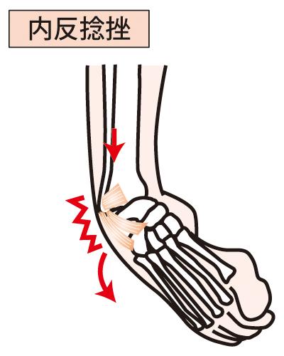 【足関節捻挫】足首の捻挫・サッカー・バレーボール・ラグビーに多い